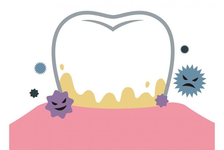 むし歯の原因