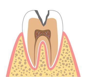 C2(象牙質のむし歯)