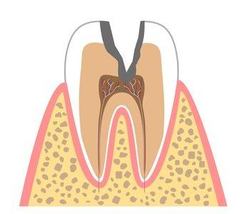 C3(歯髄まで進行したむし歯)
