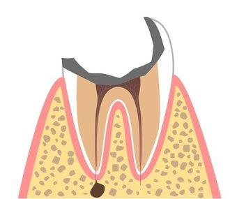 C4(歯の大部分が崩壊した状態)